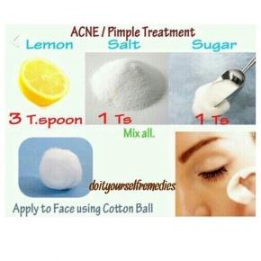 Sunday Facial (Homemade PimpleTreatment!)